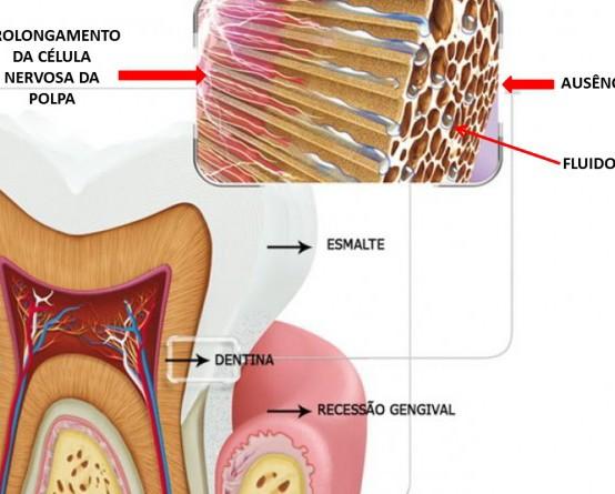 Como Tratar a Hipersensibilidade Nos Dentes?